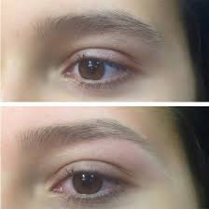 Brows before after-790